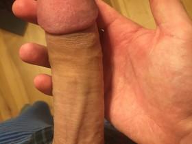Penis beschnittenen +++ Heck